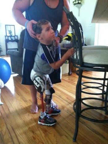 James Deere standing on Derek Jeter Prosthetic leg