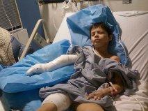 Daniel Dingley Hand Surgery 1-24-2012